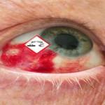 Augenveraetzung durch Giftstoffe