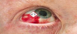 Augenveraetzung durch Gefahrstoffe